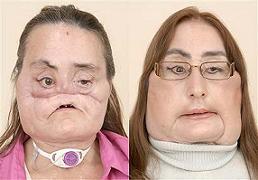 Американка с пересаженным лицом 46-летняя Кони Кальф