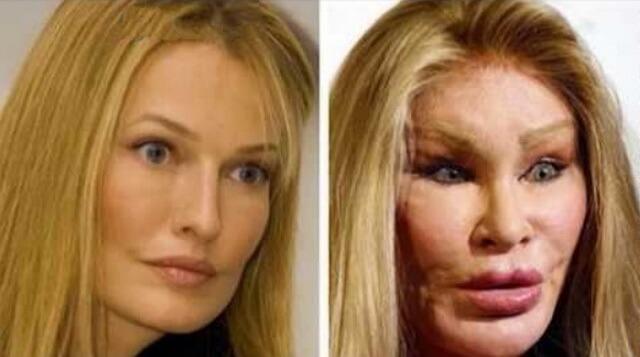 Фото знаменитостей до и после пластических операций