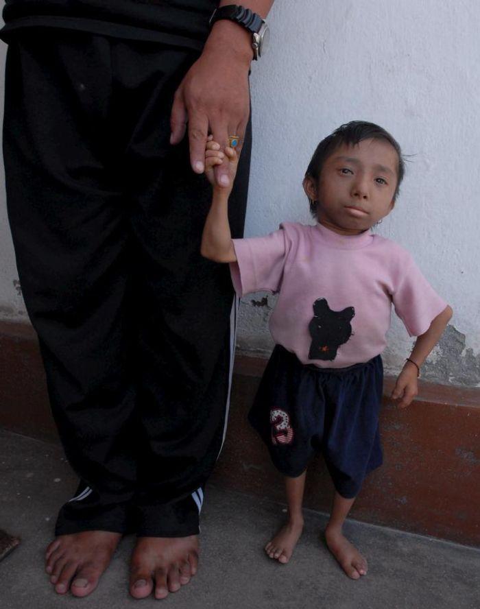 Самого маленького человека в мире