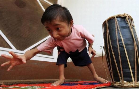 Фото самого маленького человека