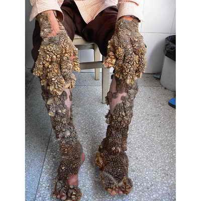 Китайцу Лину Тиандзхуану, которого называют человеком-кораллом, так как он покрыт необычными наростами, напоминающими кораллы и ракушки, сделали операцию по их удалению