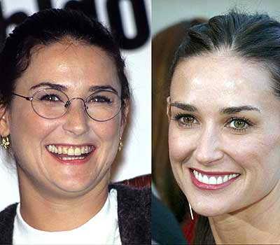 Зубы Деми Мур действительно выглядели ужасно: то ли завтрак остался на зубах, то ли актриса забыла почистить зубы?! Но мы рады, что теперь эта проблема решена