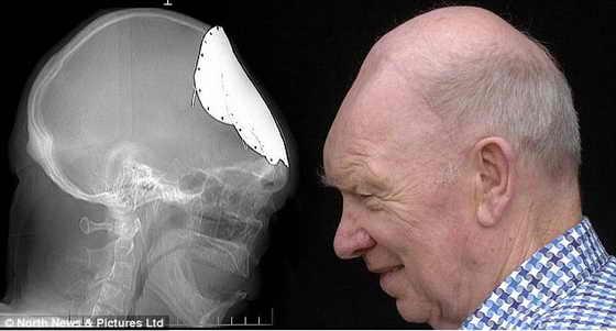 Слева: ренген Гордона Мур с металлической пластиной; справа: Гордон Мур без пластины, у него выросла собственная черепная кость