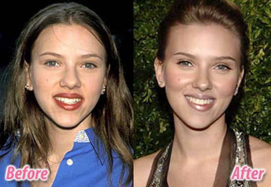 глюкоза увеличила бюст фото до и после