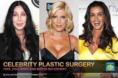 Пластические операции знаменитостей