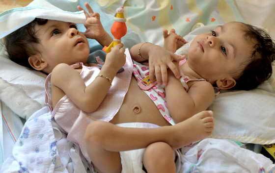 Бразильские сиамские близнецы, сестры Мария Луиза (слева) и Мария Луана в день своего первого года рождения в их доме в окрестности Беберибе в Ресифи на северо-востоке Бразилии, 10 ноября 2009 года