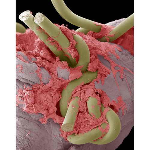 Электронная микрофотография наложения шва, сделанного в кишечнике с помощью хирургических нитей. Такие нити делаются из микрофиламентного нейлона и могут быть толщиной меньше человеческого волоса