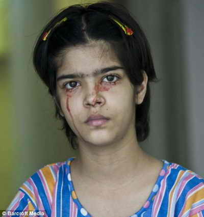 Девочка Твинкл Двиведи плачет кровью