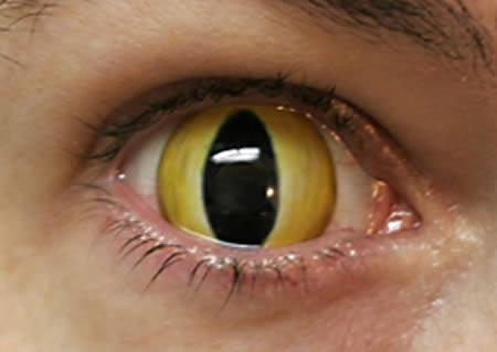 Линзы - глаз кошки