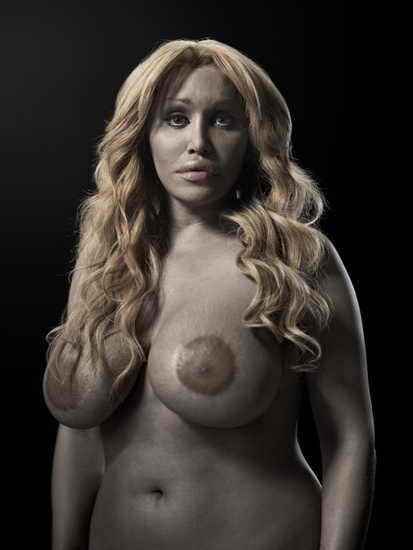 Пластическая хирургия в искусстве от Phillip Toledano