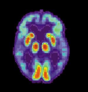 Визуализация мозга инструмент в лечении болезни Альцгеймера