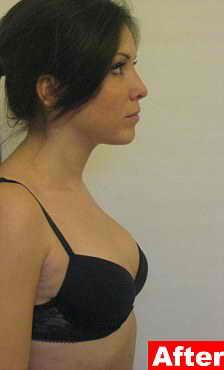 Увеличение груди за счет своего жира 98