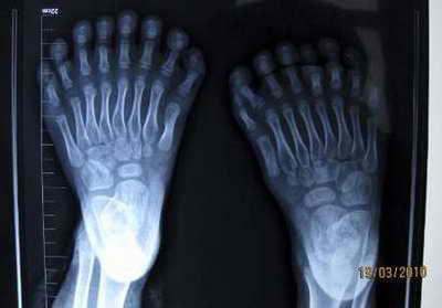 Рентген: мальчик с лишними пальцами