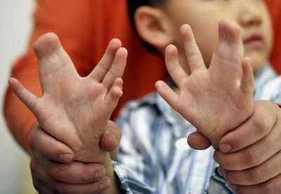 мальчик с лишними пальцами