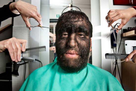 Самый волосатый человек в мире