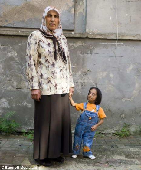 нига рекордов Гиннеса признала самой маленькой женщиной в мире 21-летнюю Хатиче Коджаман...