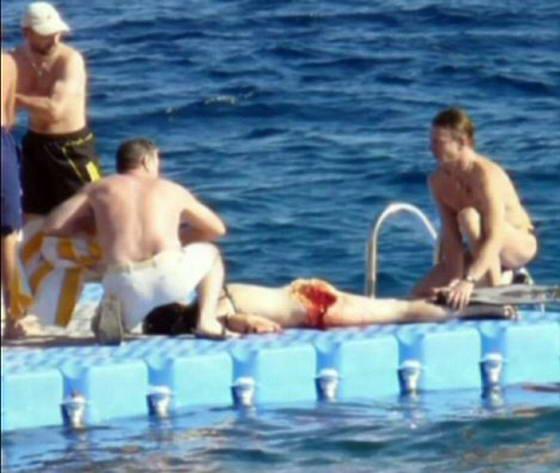 Почему в Египте нападают акулы и фото жертв акул.