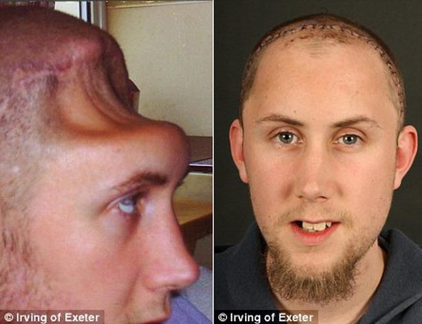 человек без черепа