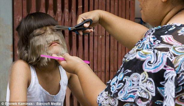 волосатая девочка