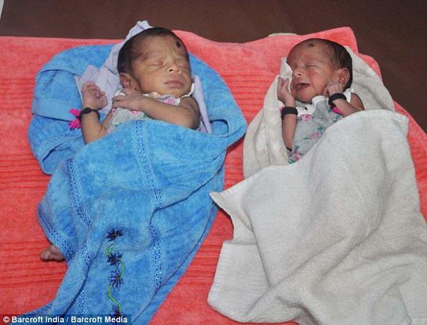 Дети рожденные из разных маток у одной женщины