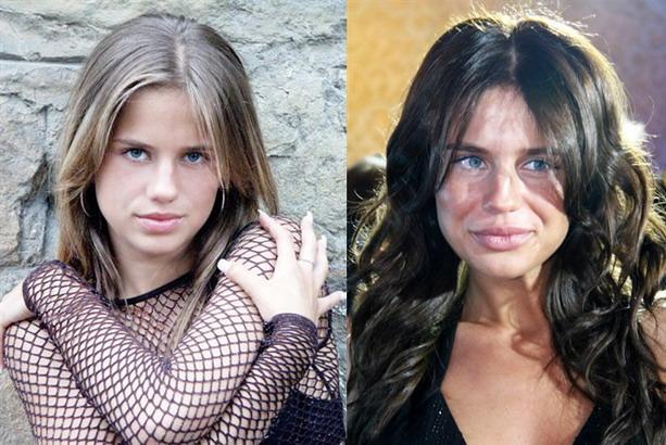 Алекса до и после пластической операции