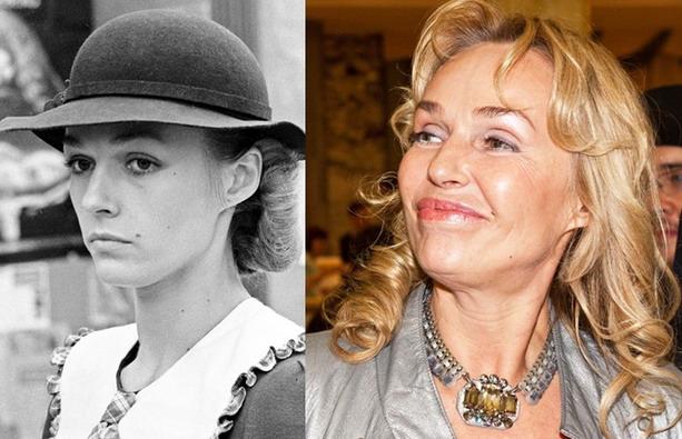 Наталья Андрейченко до и после пластической операции
