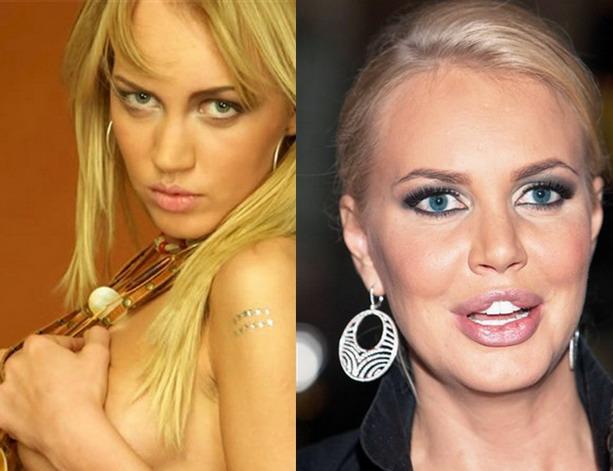 Маша Малиновская до и после пластической операции