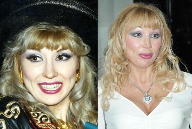Маша Распутина до и после пластической операции