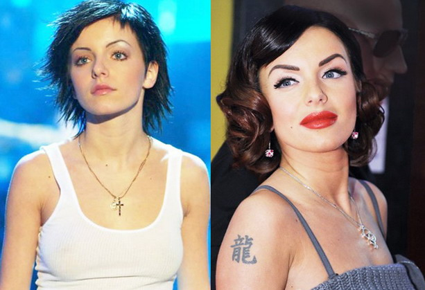 Юлия Волкова до и после пластической операции