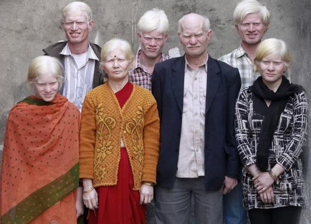 Индийская семья Пуллан признана самой большой семьей альбиносов в мире