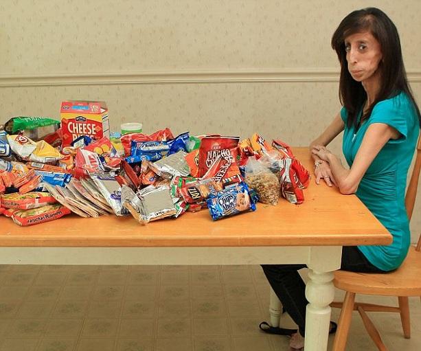 Лиззи Веласкес 25 кг самая худая женщина в мире