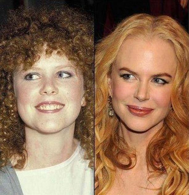 Николь Кидман до и после