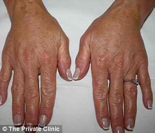 Руки после операции