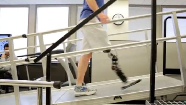 Протез - биомеханическая нога
