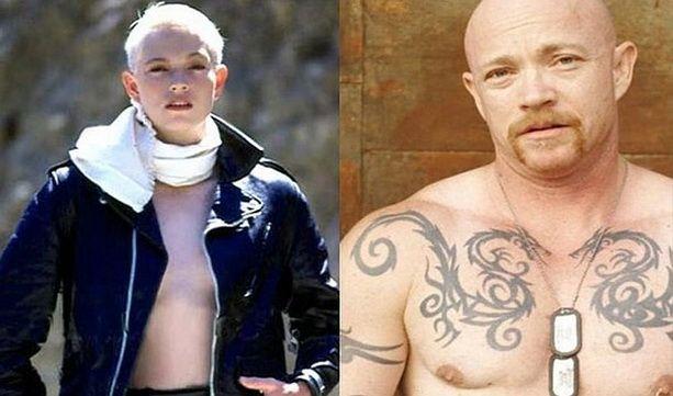 Бак Энджел фото до и после операции