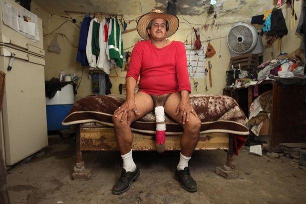 Роберто Кабрера обладатель самого большого пениса в мире, фото