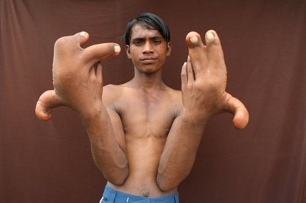 аномалия гигантские руки