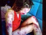 Анастасия Овсянникова жертва насилия избиение