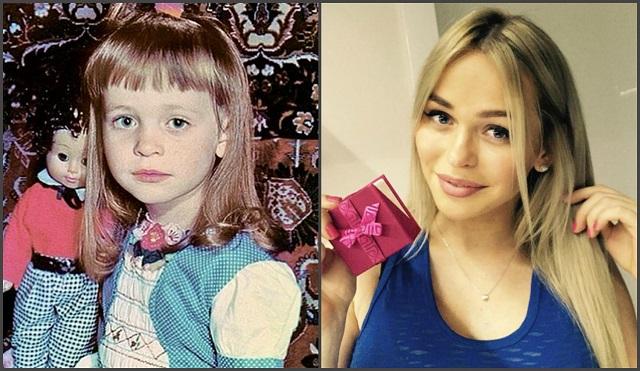 Анна Хилькевич до и после пластики
