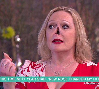 Женщина без носа Джейн Хардман