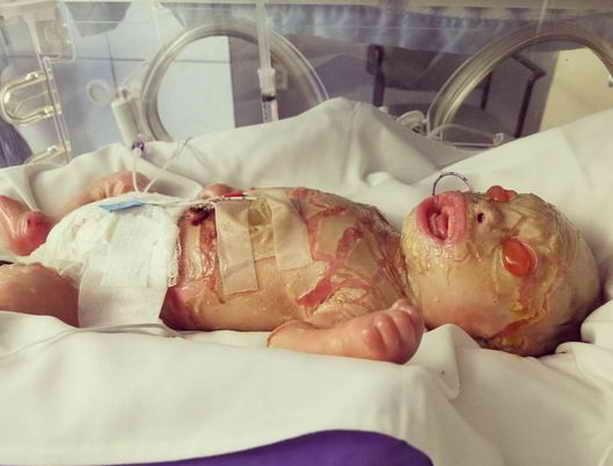Джеймисон Спам родился в мае 2017 года с ихтиозом арлекина, редким кожным заболеванием