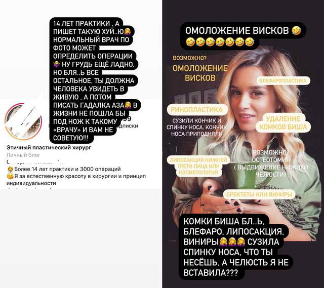 Реакция Ксении Бородиной на пластику