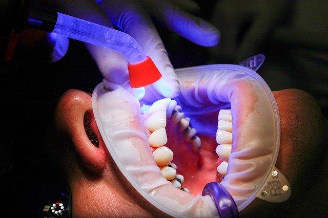 Мягкие зубные протезы из нейлона – разновидности, основные плюсы и минусы